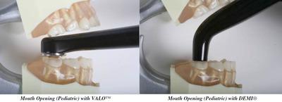 ultradent-valo-acces.jpg