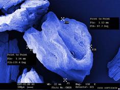 gen_os_microscop_1.jpg
