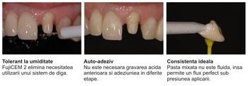 fujicem-2-clinic1.jpg