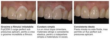 fujicem-2-clinic2.jpg