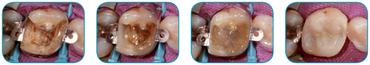 everx-posterior-clinic1.jpg