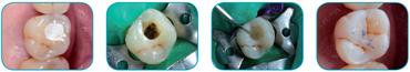 everx-posterior-clinic3.jpg