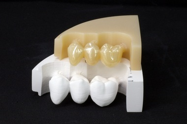 ml-zirconia-milled.jpg