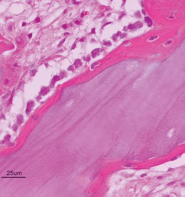 biopsie-tsv.png