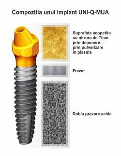 implant-uni-compozitie.jpg