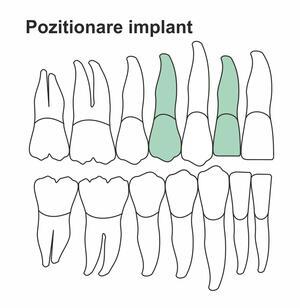 pozitionare-implant-ia-34.jpg