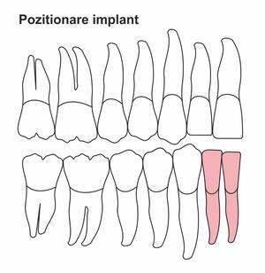 pozitionare-implant-ic-30.jpg