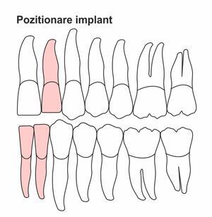 pozitionare-implant-ic-34.jpg
