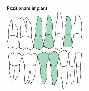 pozitionare-implant-ic-38.jpg