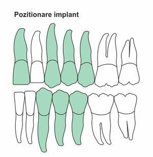 pozitionare-implant-ic-42.jpg