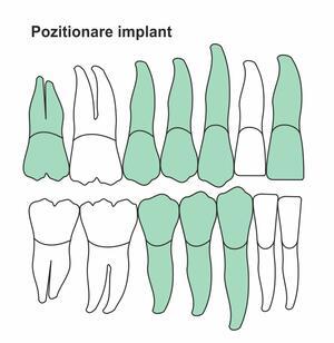 pozitionare-implant-ic-46.jpg