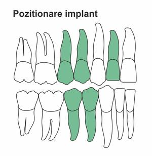 pozitionare-implant-ik-38-ht.jpg