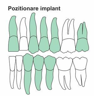pozitionare-implant-ik-46-ht.jpg