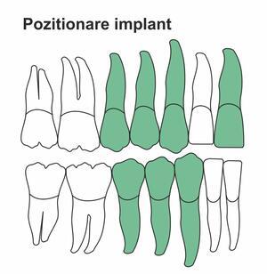 pozitionare-implant.jpg
