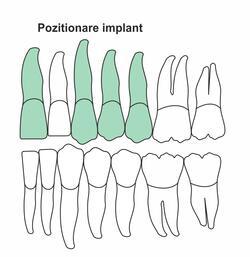 pozitionare-implant-ia-38.jpg