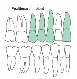 pozitionare-implant-ia-42.jpg