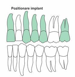 pozitionare-implant-ia-46.jpg