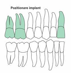 pozitionare-implant-ia-50.jpg