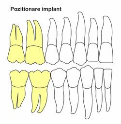 pozitionare-implant-ic-50.jpg