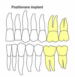 pozitionare-implant-ik-50.jpg